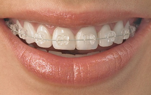 Fixed Braces provieded by Specialist Orthodontists
