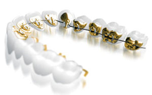 Lingual Braces provided by Specialist Orthodontists