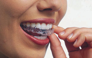 Invisible Aligners provided by Orthodontic Experts